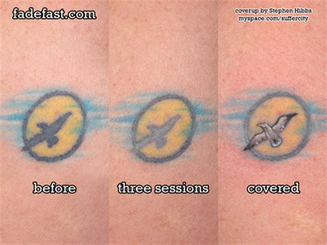 tca acid tattoo removal removal tca removal tca otherwise