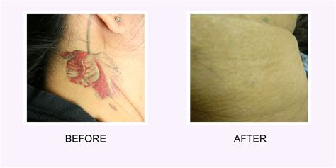 how much tattoo removal how much can laser removal really remove
