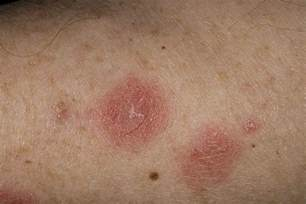 Bed Bug Drug Nummular Eczema Causes Symptoms Treatment Pictures