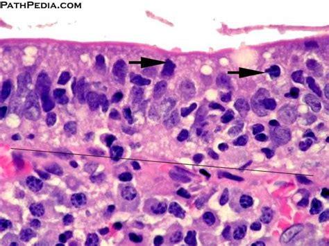 Histopathology images of Celiac disease (sprue) by ... Eosinophils Symptoms