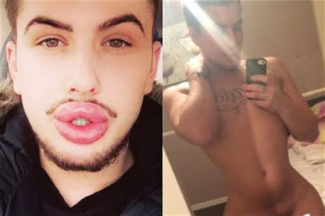 Hold Buttox has lip fillers botox and bum implants to