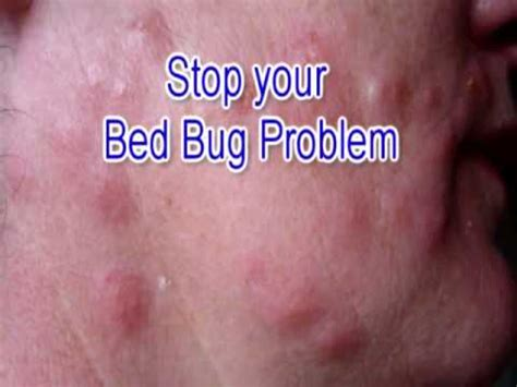 how to get rid of bed bugs yourself fast full download amazing how to get rid of bed bugs at home yourself fast