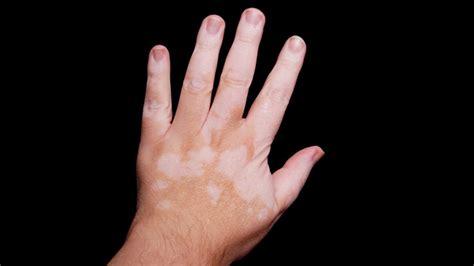 vitiligo images what does vitiligo look like