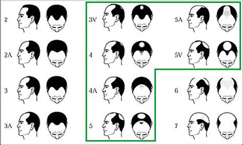 hair cuts for balding crown problem similar design thinning hair at crown problems short