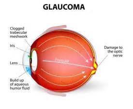 leukemia blindness glaucoma symptoms causes treatments news today