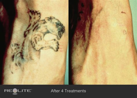 tattoo removal c creek removal cosmetic dermatology walnut creek ca 94598