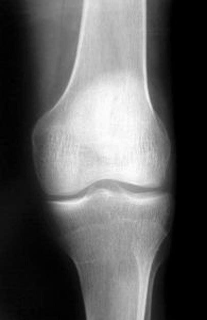 imagenes para perfil normal radiograf 237 a de la rodilla 1 descargar fotos gratis
