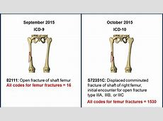 Preparing for ICD-10: Now Is the Time Femur Icd 10
