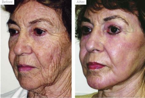 ablative laser resurfacing skin resurfacing laser lumenis special feature facial resurfacing aesthetics