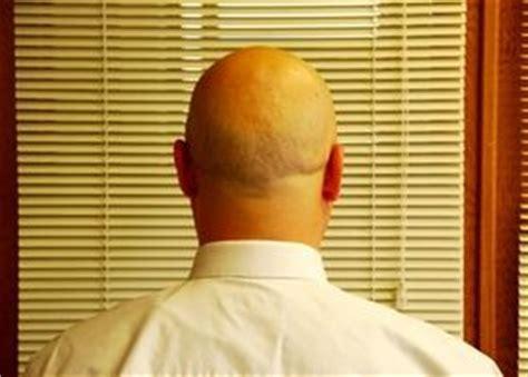 dolor de cuero cabelludo causas 191 qu 233 causa golpes dolorosos en el cuero cabelludo salud