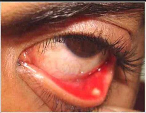 eye swollen the inner corner of my eye is swollen things you didn t