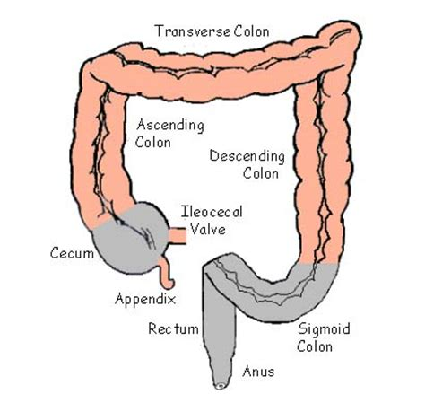 diagram of bowel sigmoid colon and diverticulosis