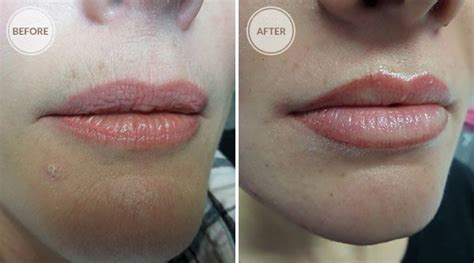 lip liner tattoo cost uk permanent makeup lips cost in india makeup vidalondon