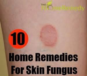 fotos de la candidiasis cures for fungal infections of