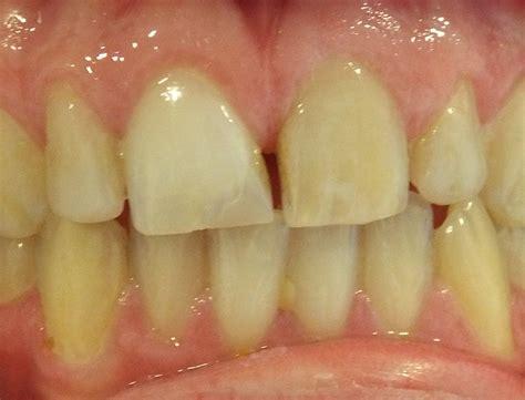broken teeth discoloured teeth  dental crown