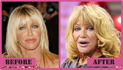 Suzanne Somers Celebrity Plastic Surgery 24 | suzanne somers plastic surgery news celebrities