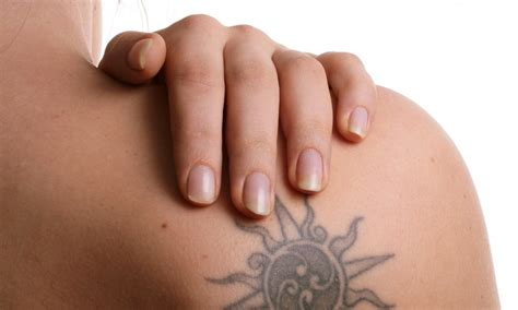 tattoo removal doctor laser tattoo removal tattoo removal doctor groupon
