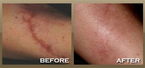 scar removal laser surgery laser surgery laser treatment how much is