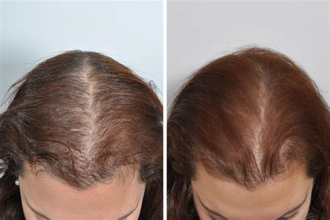 hair transplant center nyc hair transplantations nyc hair transplant surgery for women in new york city david