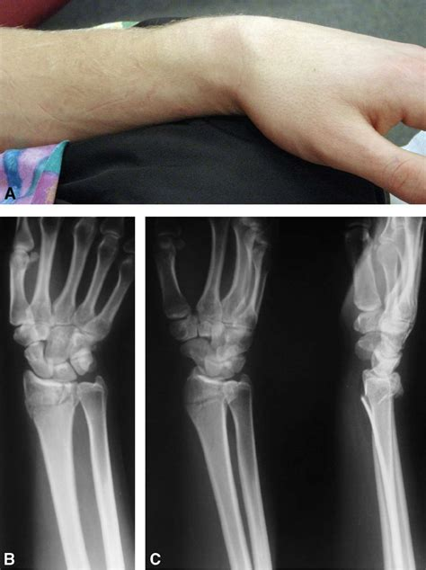 colles fracture reduction  hematoma block anesthesia key