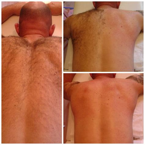 wax photos before and after hair removal 15 best images about mens needs on pinterest laser hair