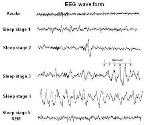 Waves By Sleeper by Sleep Wave Patterns Search Interesting Science