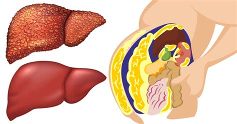 Foods To Boost Liver Detox by 10 Foods That Boost Liver Function Help Detox Your