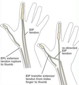epl exercises tendon transfer