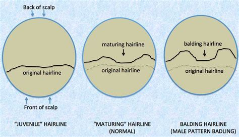 hairline pattern is your hairline maturing or a balding donovan hair