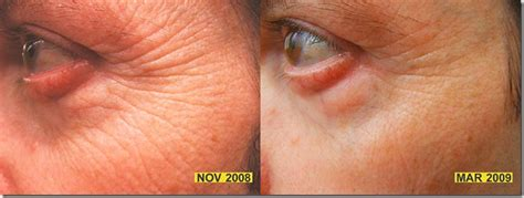 Does Red Light Therapy Work How You Can Easily Diminish Wrinkles With Red Light