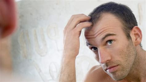 prevent and prolong balding mens health hair myths you should stop believing health