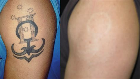 scars after tattoo removal removal laserskincare