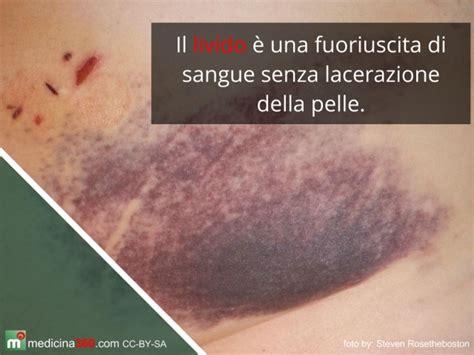 rottura vasi capillari lividi ed ematomi sul corpo da o improvvisi e