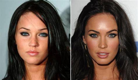 celebrity plastic surgery blog celeb surgery pics worst celebrity plastic surgery fails 5 chinadaily com cn