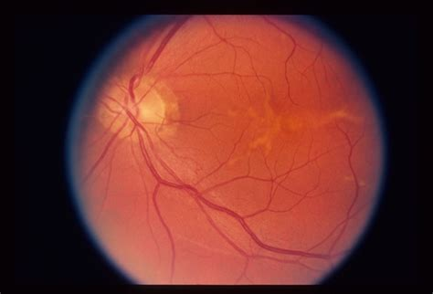 pattern dystrophy eye disease pattern dystrophy retina image bank