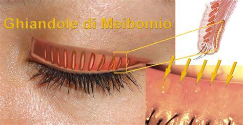 calazio e alimentazione calazio offitalia oftalmica farmaceutica italia