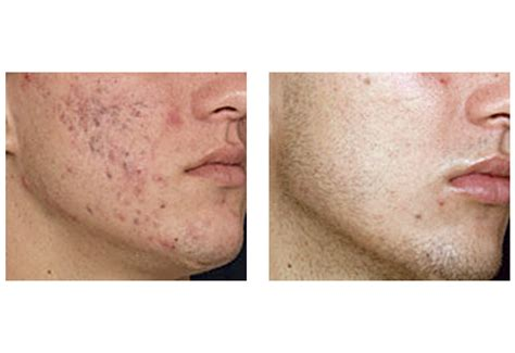 laser acne treatment vbeam smoothbeam blu u lasers