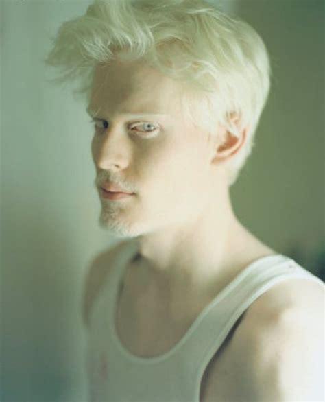 what color are albinos les albinos