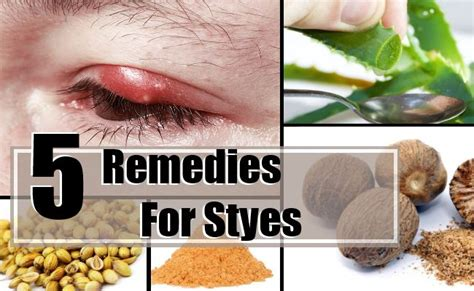 5 home remedies for styes treatments cure for