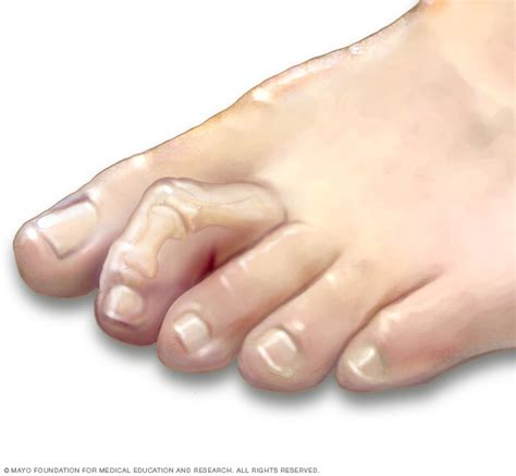hammertoe and mallet toe symptoms and causes mayo clinic