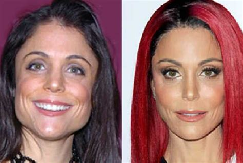 bethenny frankel plastic surgery before and after bethenny frankel s new face plastic fantastic or au