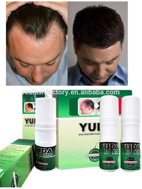 best hair growth pills for men treatments for sexual world best hair growth spray men hair regrowth oil yuda
