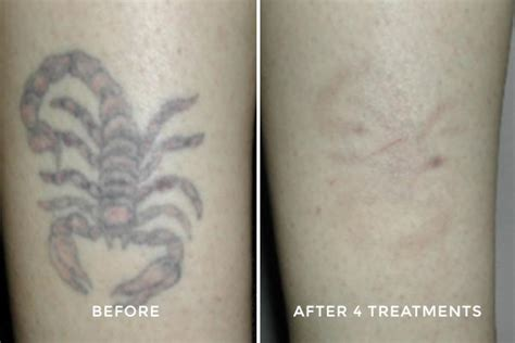 fresh start laser tattoo removal before after photos laser removal