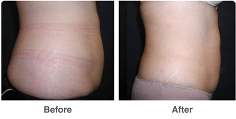 lipo after c section liposuction in las vegas nv dr troell top lipo surgeon