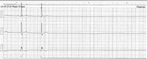 test al synacthen glossopharyngeal neuralgia associated with cardiac syncope