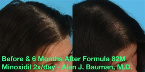 rogaine for women before and after photos minoxidil women before and after things you didn t know