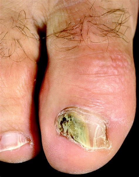 nail bed infection fungal nail infection the bmj