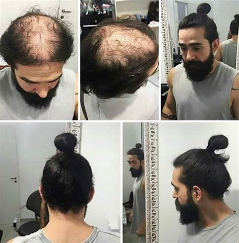 women hair cut to cover bald spot on top of head hiding that bald patch with a man bun well you could be