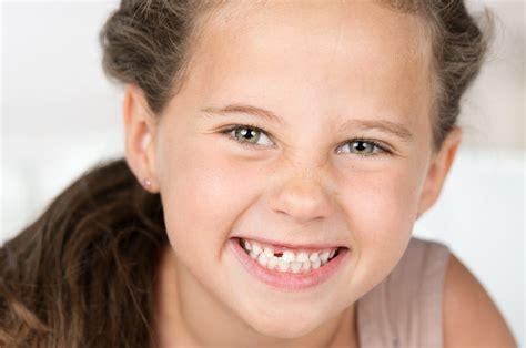 wann kommen die zähne bei kindern zahnl 252 cken wackelz 228 hne schiefe z 228 hne bei kindern