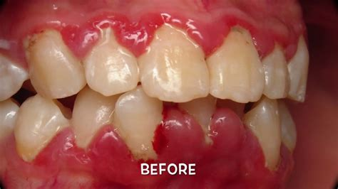 gingivitis treatment gingivitis before and after www pixshark images galleries with a bite